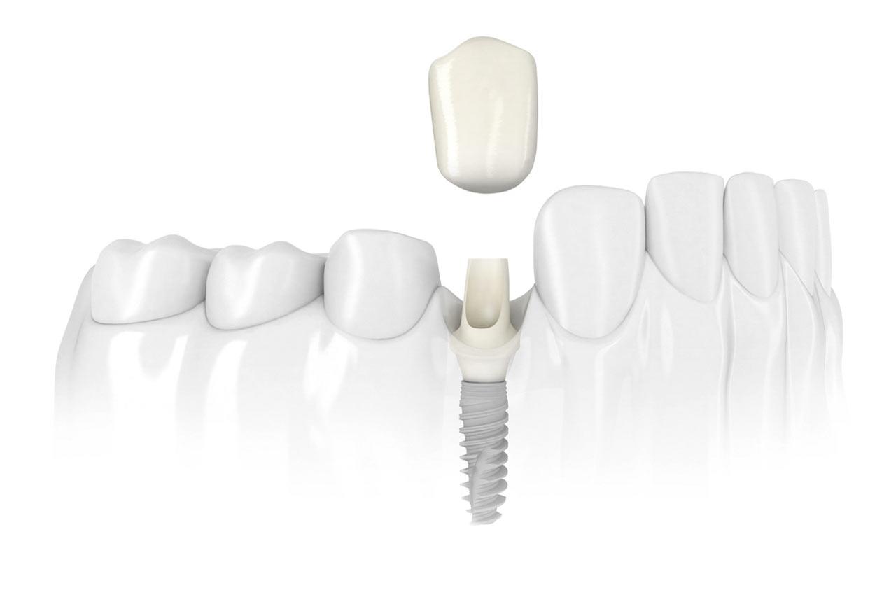Implantologia - impianto dentale - Ferrara Medica - poliambulatorio specialistico privato a Ferrara (FE)