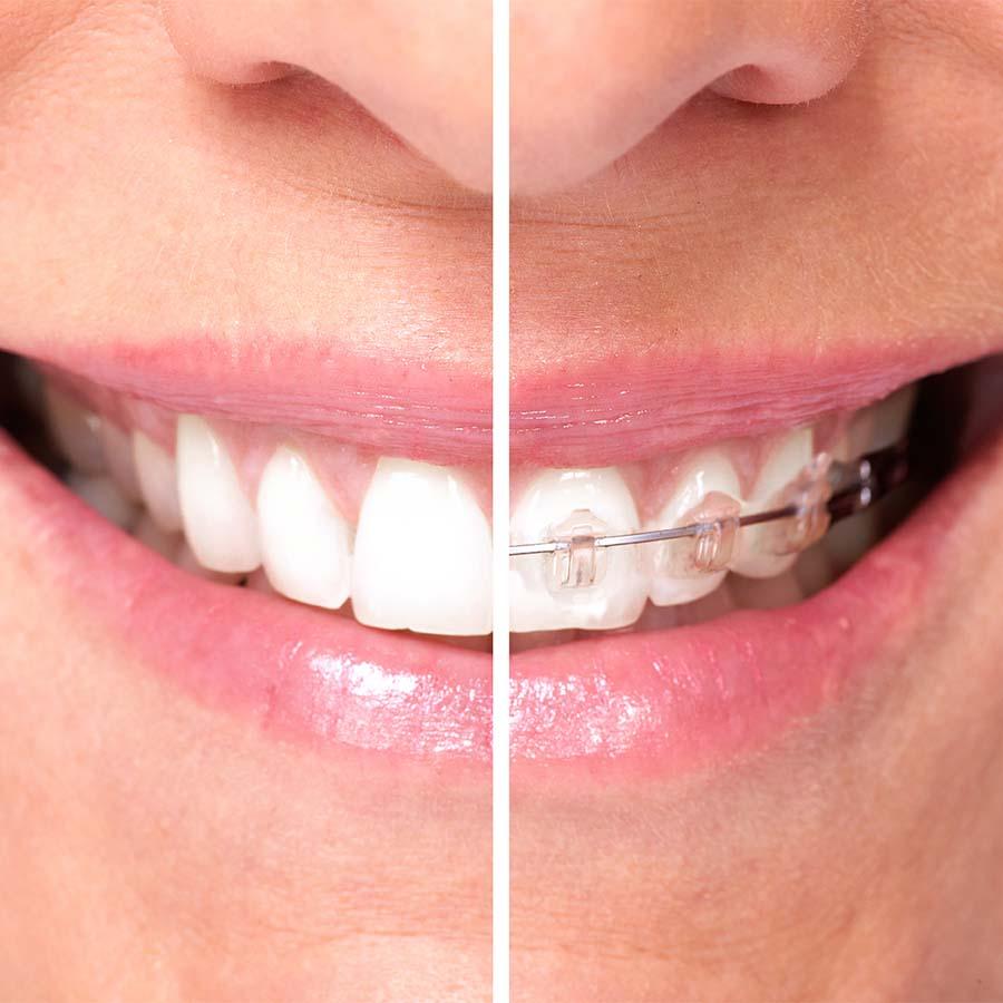 ortodonzia - ortodonzia tradizionale Ferrara Medica - poliambulatorio specialistico privato a Ferrara (FE)